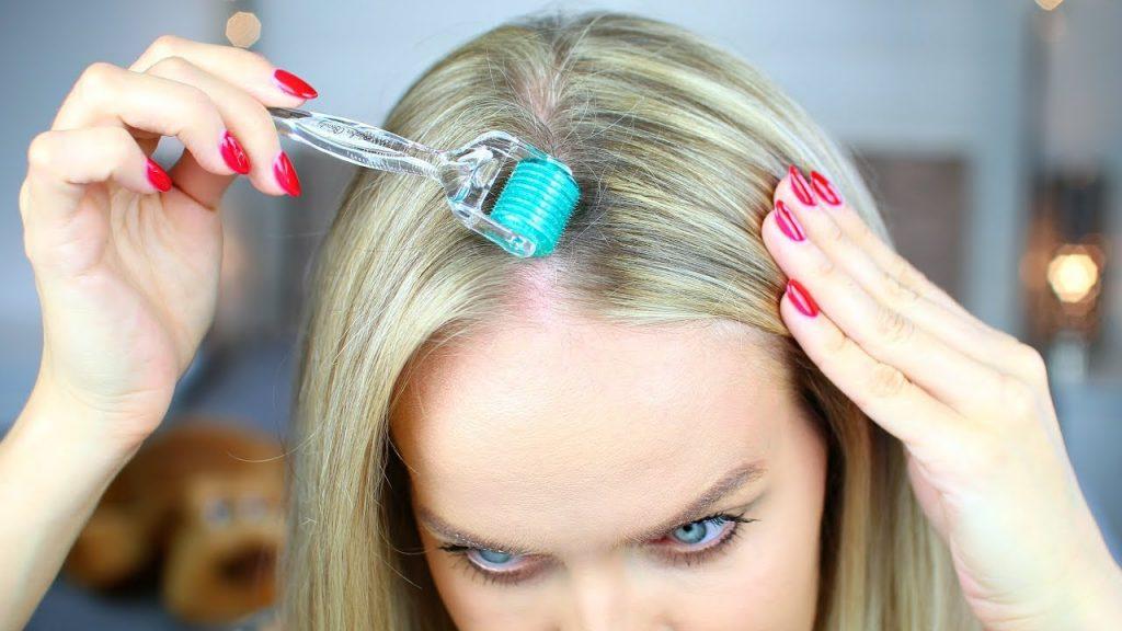 Woman using Dermaroller on scalp