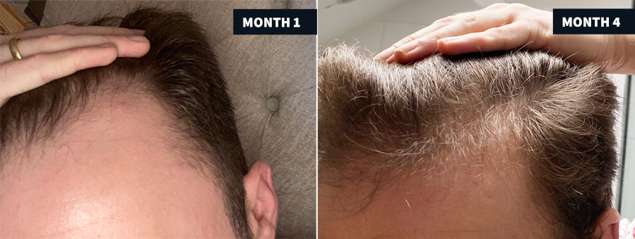 Hair Follicle Neogenesis before and after photo