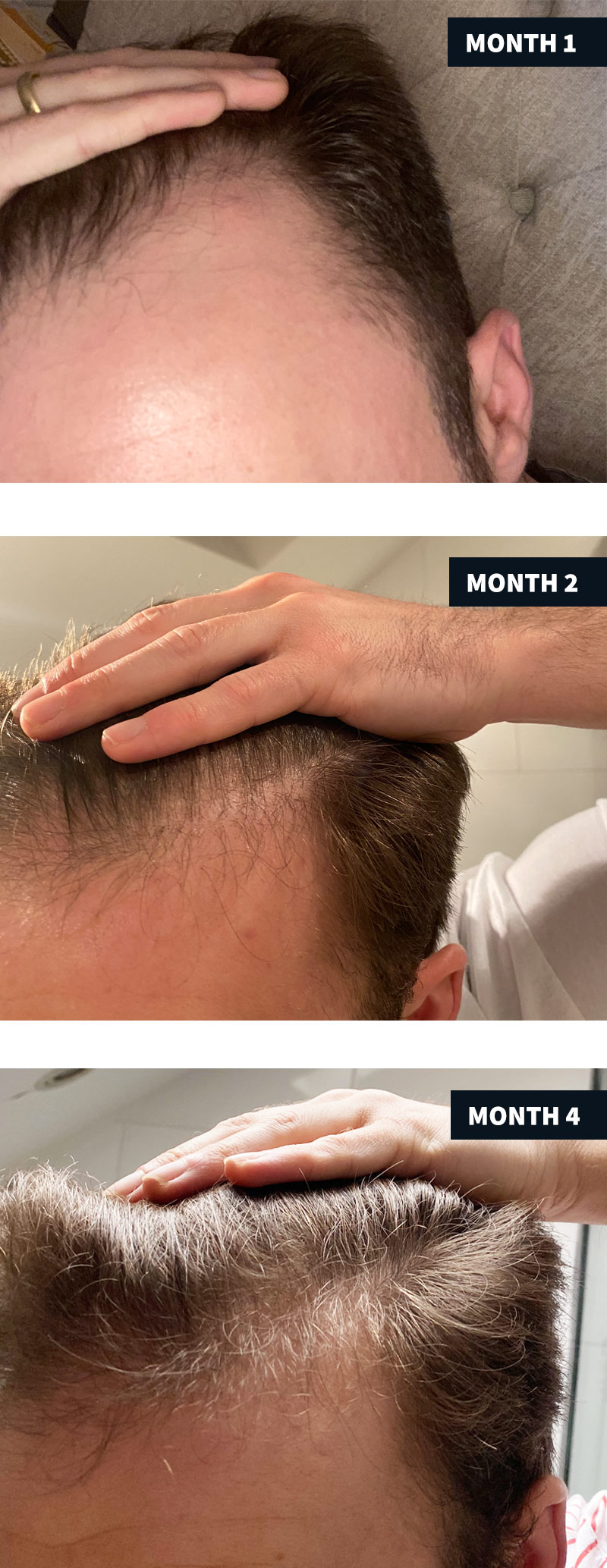 Hair follicle neogenesis before and afters