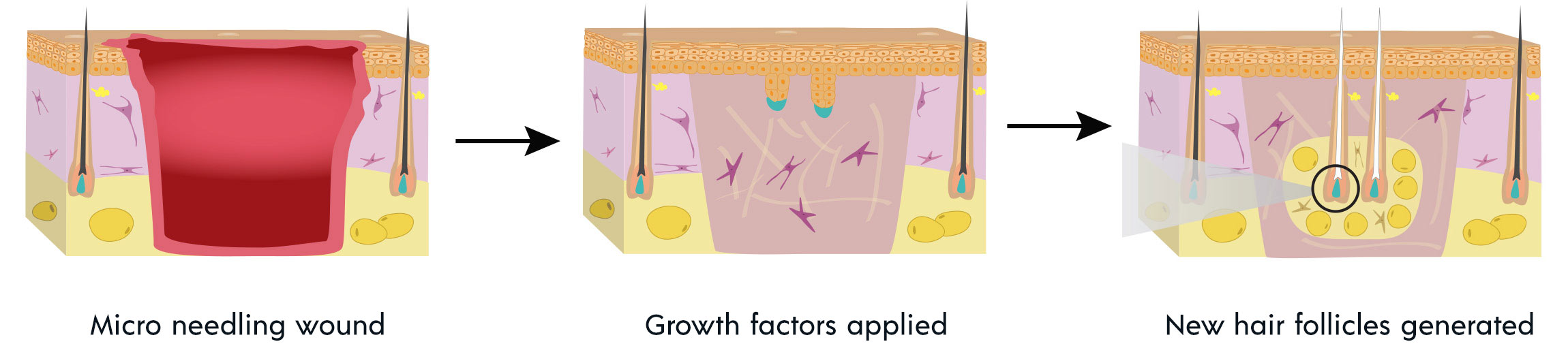 Wound induced hair follicle neogenesis
