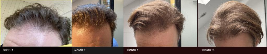 Hair follicle neogenesis method progress photos